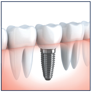 Aftercare for Dental Implants