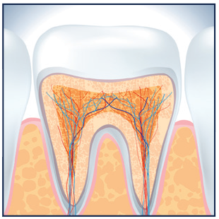 Aftercare for Root Canal Procedure